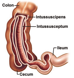 Description: Image result for intussusception