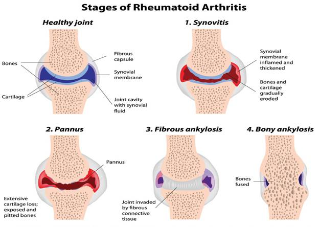 an experience of a survivor of rheumatoid arthritis Rheumatoid arthritis rheumatoid arthritis: symptoms, causes and treatments rheumatoid (roo-mah-toid) arthritis is the most common form of inflammatory arthritis.
