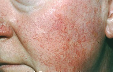 Description: rosacea-symptoms_ETR.jpg