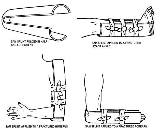 how to apply a sam splint