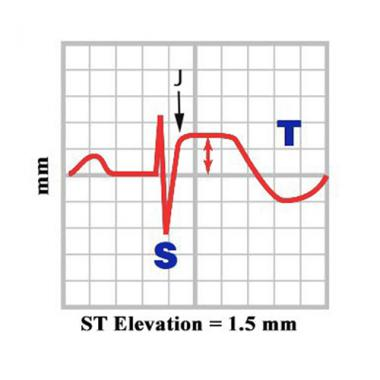 Description: Image result for how to measure st elevation
