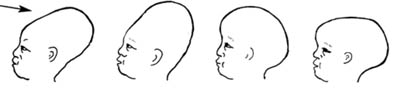 Description: Normal variations in moulding of the newborn skull, which usually disappears within 1F02D3 days after the birth.