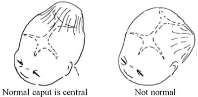 Description: A caput (swelling) of the fetal skull is normal if it develops centrally, but not if it is displaced to one side.